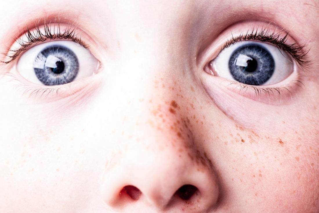 surprised-girl-eyes
